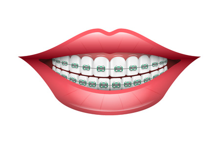 Dental Braces, Orthodontics, Dentistry, Teeth