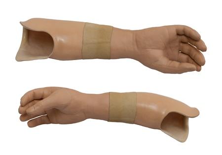 prothese: Zwei angesichts der Armprothese auf einem wei�en Hintergrund