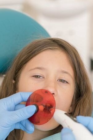 girl getting dental filling treatment at molar tooth with ultraviolet technology. Image of little girl having her teeth checked by doctor. vertical photo