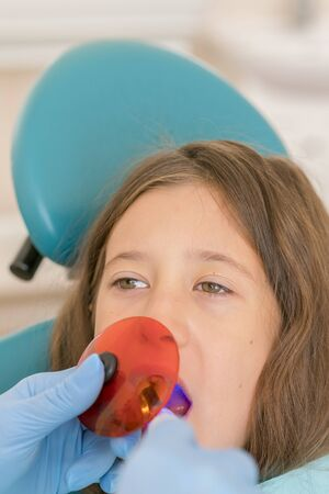 girl getting dental filling treatment at molar tooth with ultraviolet technology. Image of little girl having her teeth checked by doctor. vertical photo. Reklamní fotografie