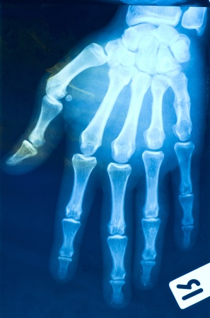 rentgen: x-ray hand (finger)