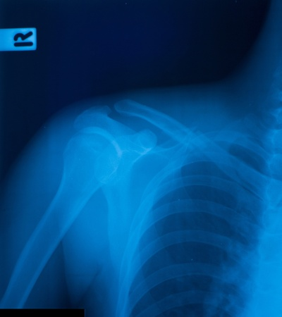 X-ray film of clavicle fracture