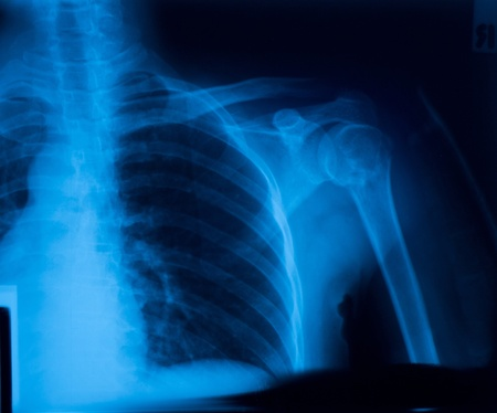 X-ray film of shoulder fracture