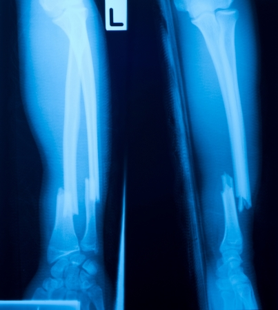 X-ray film of  bone leg fracture.