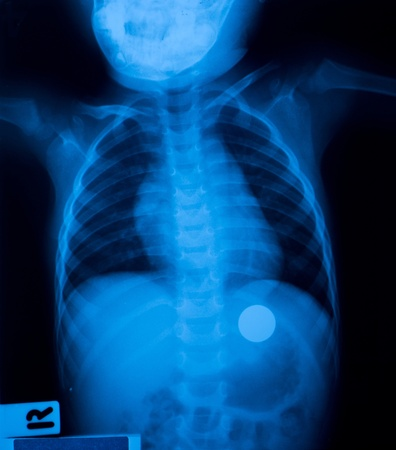X ray film of a child who swallowed a coin