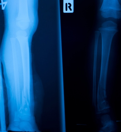 X ray film  of tibia leg fracture photo