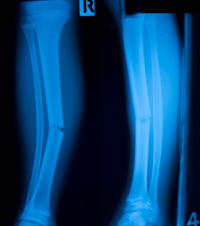 X ray film  of tibia leg fracture Stock Photo