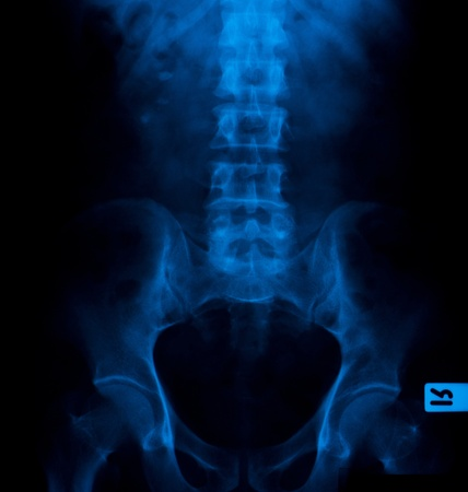Película de rayos X de los cálculos renales (piedras 3) Foto de archivo - 12107958