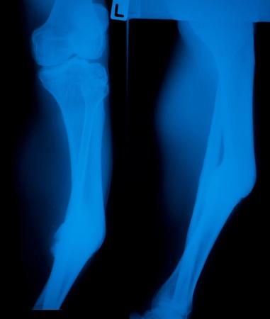 shin: X ray film  of  shin bone disorder Stock Photo