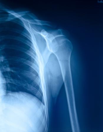 X-ray film of shoulder fracture   版權商用圖片