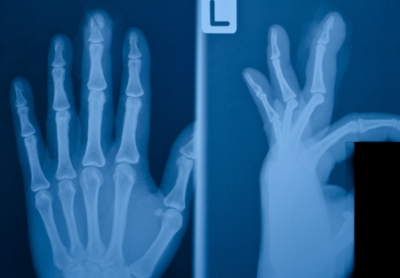 X-ray film of finger  fracture          photo