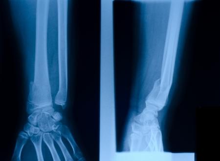 distal: X ray film  of  distal radias fracture  Stock Photo