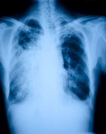 lung bronchus: Pneumonia patients x-ray film