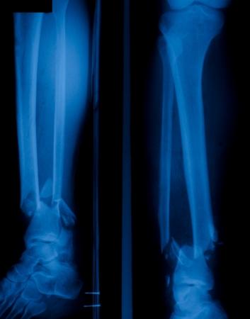 X ray film of  bone leg fracture  photo