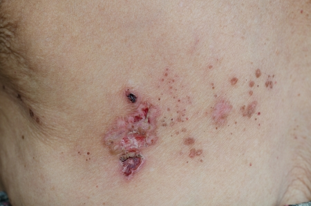 dermatology: Herpes zoster Stock Photo