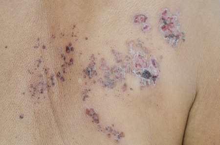 ulcers: Herpes zoster Stock Photo