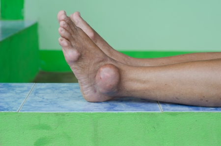 gout: foot of gout patient Stock Photo