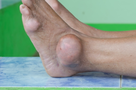 arthritis: foot of gout patient Stock Photo