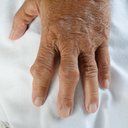 gout: Fingers of patients with gout