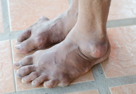 foot of gout patient Stock Photo