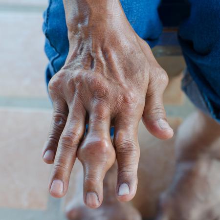 artritis: Dedos de los pacientes con gota.