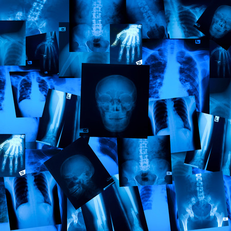 X ray film background Standard-Bild