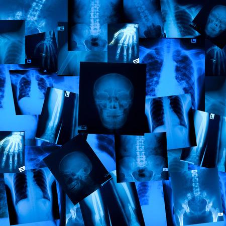 X ray film background Stock Photo