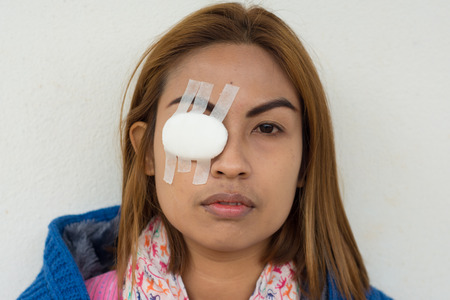 eye pad: Woman blindfolded with eye pad because eye inflammation Stock Photo