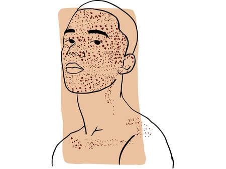 Hand-draw outline portrait of a young man with his face cover by freckles and dark beige sample color. Abstract colletion of different people and skin tones. Diversity concept Illustration