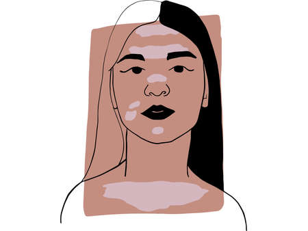 Hand-draw outline portrait of a young  woman with vitiligo  and dark beige sample color. Abstract colletion of different people and skin tones. Diversity concept