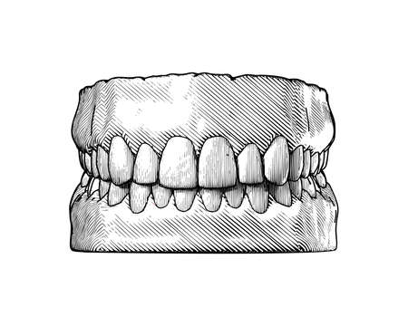 Monochrome vintage engraving drawing tooth and gum close jaw represent for dental occlusion front view illustration isolated on white background Stock Illustratie