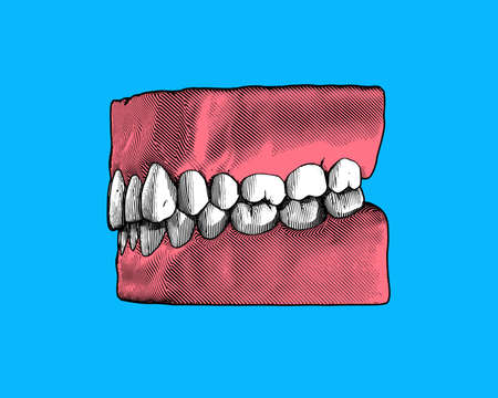 Colorful vintage engraving drawing tooth and gum close jaw side view represent for dental occlusion illustration isolated on blue background