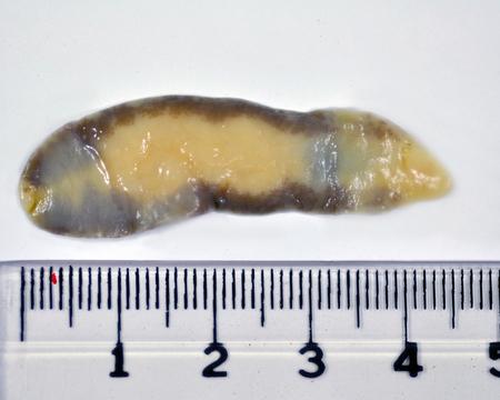 hepatica: asciolopsis buski with scale