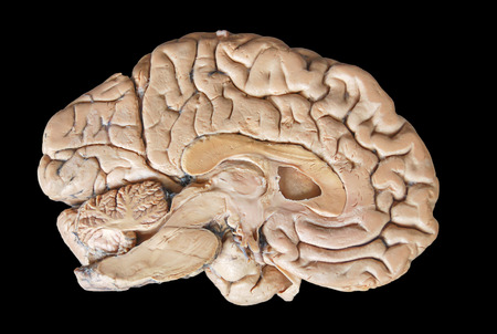 sense of space: Real human half brain anatomy isolated on black background
