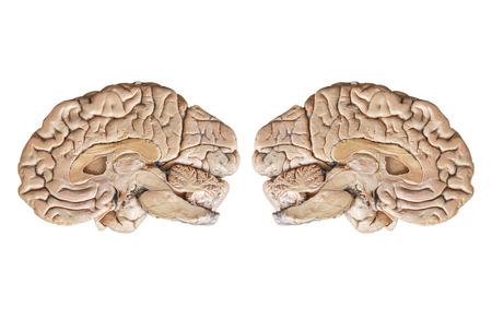 cerebra: Real human half brain anatomy isolated on white background