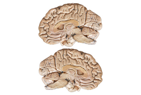 two and a half: Real Two human half brain anatomy isolated on white background