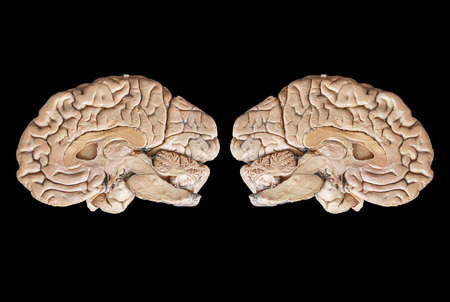 two and a half: Real Two human half brain anatomy isolated on black background Stock Photo