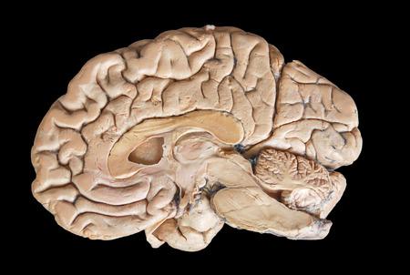 cerebra: Real human half brain anatomy isolated on black background