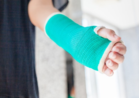 splint: Splint,broken bone,broken hand. Stock Photo