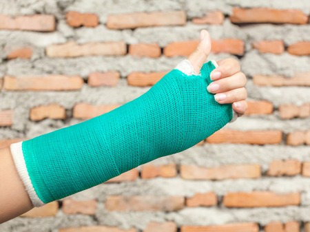 splint: F�rula, un hueso roto, fractura en la mano.