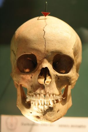 human skull in the national museum in Prague Stock Photo - 3635663