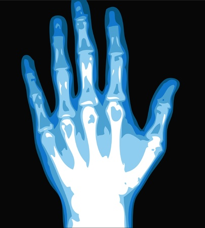 skeletal: xray hand isolated on the black background  Illustration