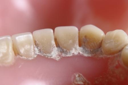 dientes sucios: dientes dentista problema de fondo muy agradable