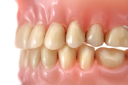 periodontics: detail of teeth prosthesis as dentist background