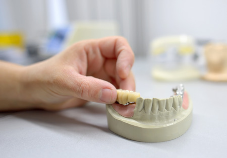 Closeup of dental technician working