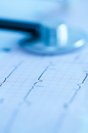 Cardiogram with stethoscope shoot with short focus photo