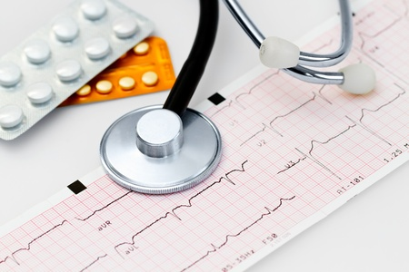 Cardiogram with stethoscope and cardio pills photo