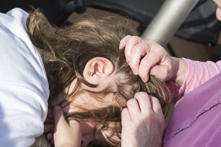 scratching head: Mother looking for head lice at her little daughter to sunlight