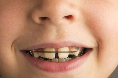 crooked teeth: Closeup of smiling little girl wearing an orthodontic dental apparatus for correcting the position of teeth
