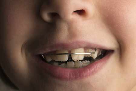 Closeup of smiling little girl wearing an orthodontic dental apparatus for correcting the position of teeth